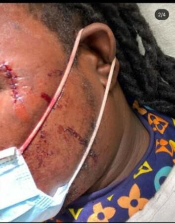 États-Unis : le populaire Disc jockey haïtien Tony Mix blessé suite à une bagarre en Floride